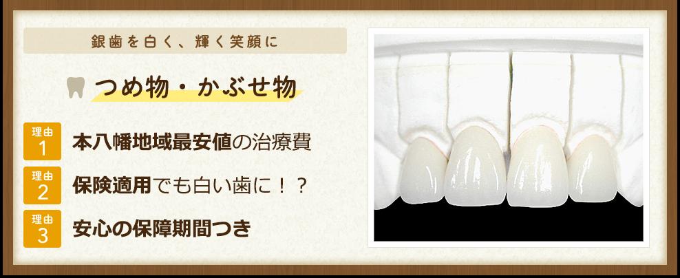 銀歯を白く、輝く笑顔に