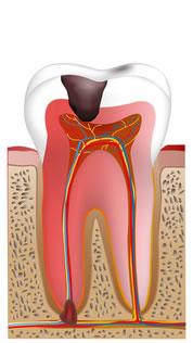 根管内感染虫歯