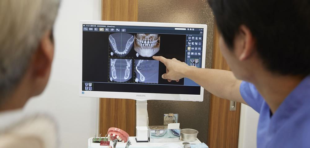 とくずみ歯科本八幡式 「精密・根管治療法」